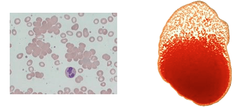 Agglutination Images