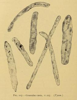 Granular Cast