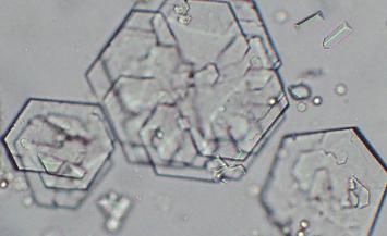Cystine Crystals