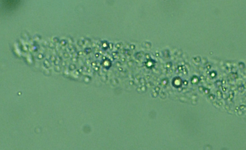 Hyaline Cast with Fat Droplets