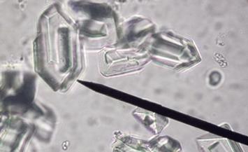 Struvite Crystals