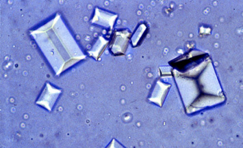 Struvite Crystals Image
